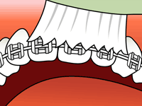 FAQs - LIFE WITH BRACES - Brushing 1