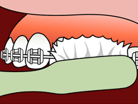 FAQs - LIFE WITH BRACES - Brushing 2