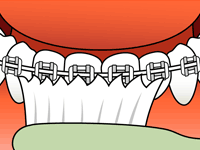 FAQs - LIFE WITH BRACES - Brushing 3